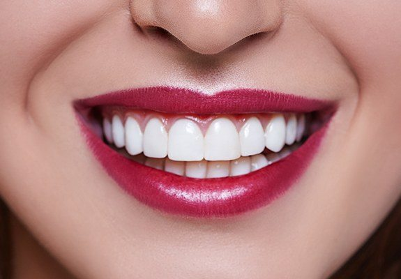 Closeup of healthy teeth and gums after gum recontouring