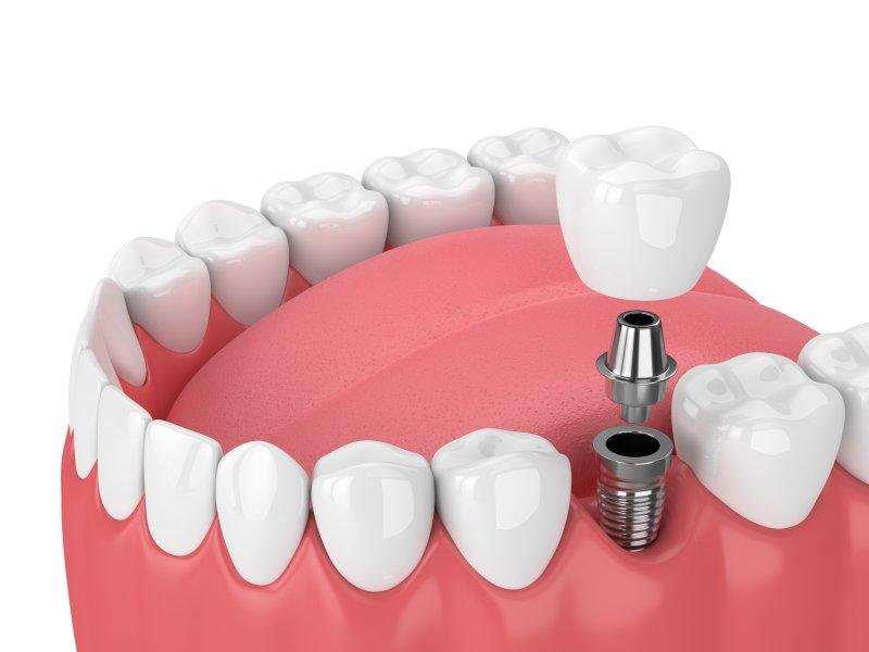 Illustration of dental implants in Washington, DC